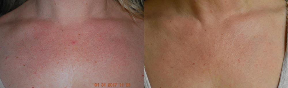 Broadband Light BBL | Palo Alto Laser & Skin Care