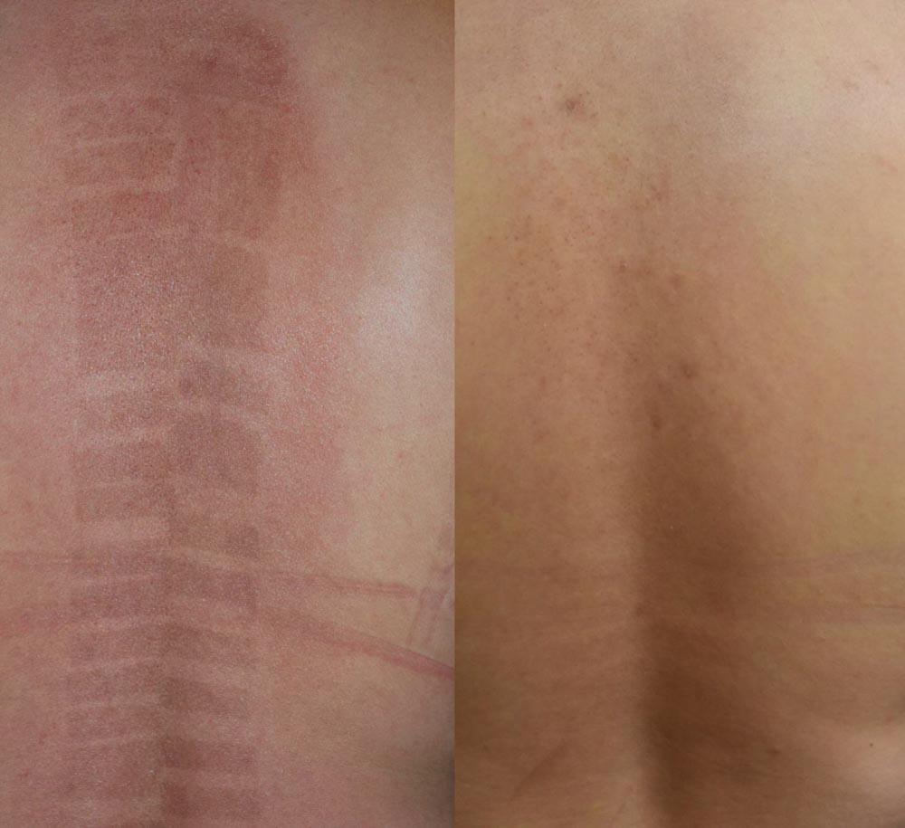 Clear and Brilliant | Palo Alto Laser & Skin Care