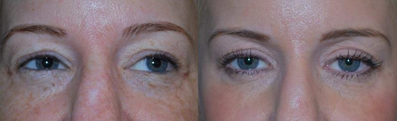 CO2 Laser | Palo Alto Laser & Skin Care