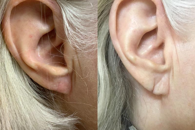 Ear Lobe Repair | Palo Alto Laser & Skin Care