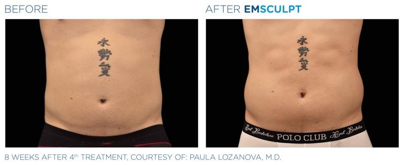 Emsculpt | Palo Alto Laser & Skin Care