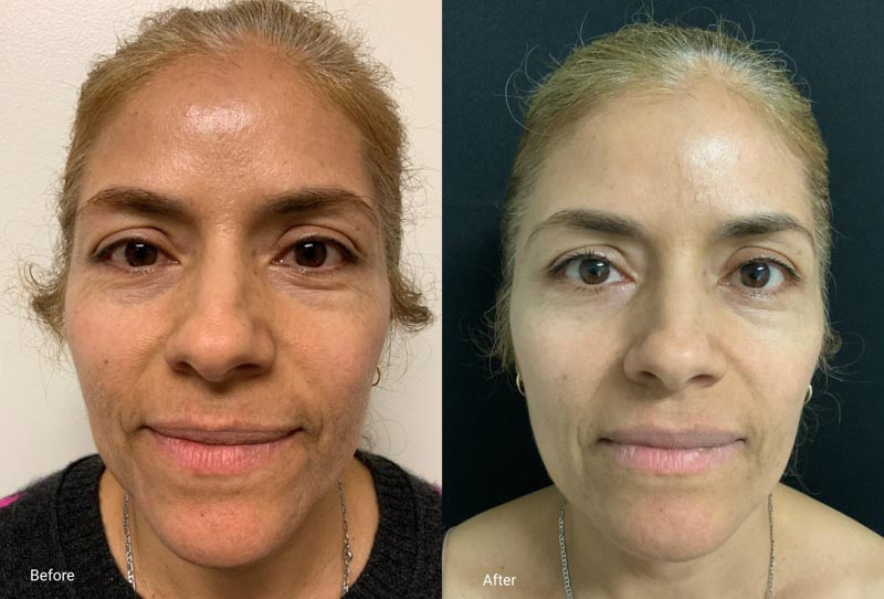 Microneedling | Palo Alto Laser & Skin Care