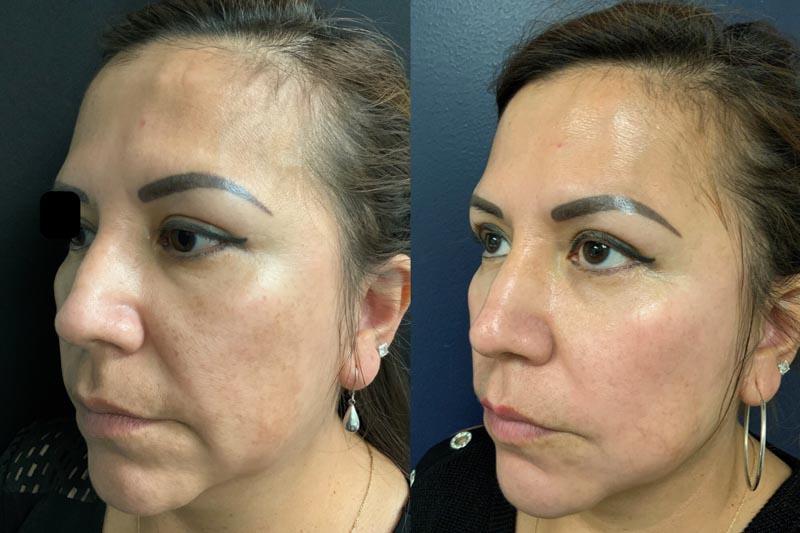Peels | Palo Alto Laser & Skin Care