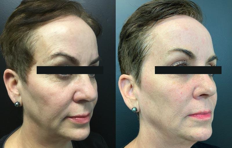 Skin Tightening | Palo Alto Laser & Skin Care