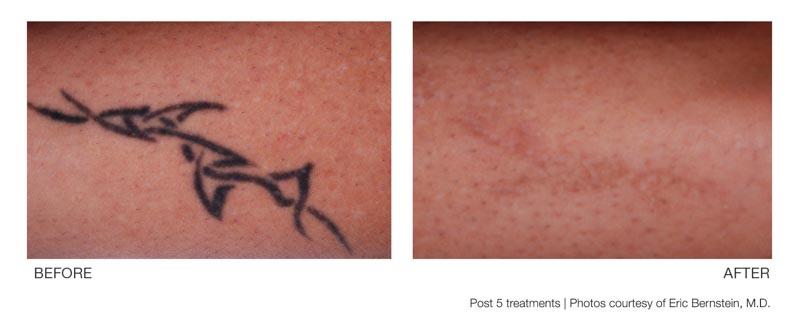 Tattoo Removal | Palo Alto Laser & Skin Care