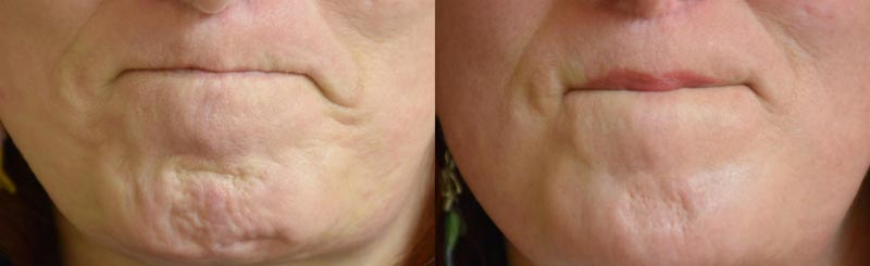 Botox Before/After | Palo Alto Laser & Skin Care
