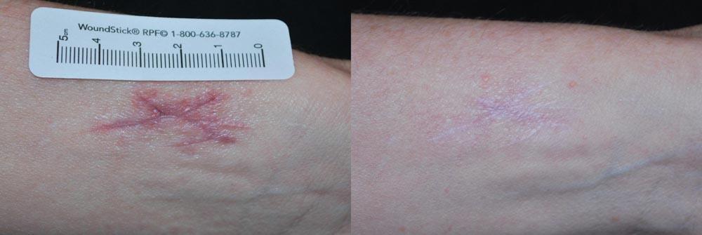 Fraxel | Palo Alto Laser & Skin Care