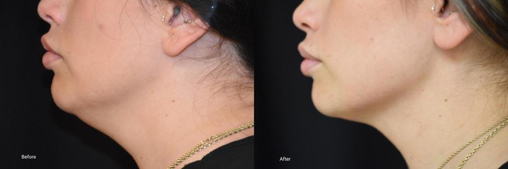 Kybella Before/After | Palo Alto Laser & Skin Care