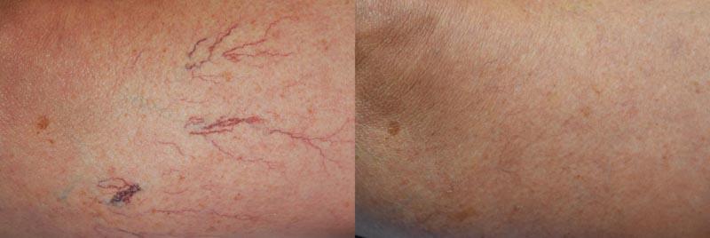 Leg Vein, Varicose Vein, and Spider Veins | Palo Alto Laser & Skin Care