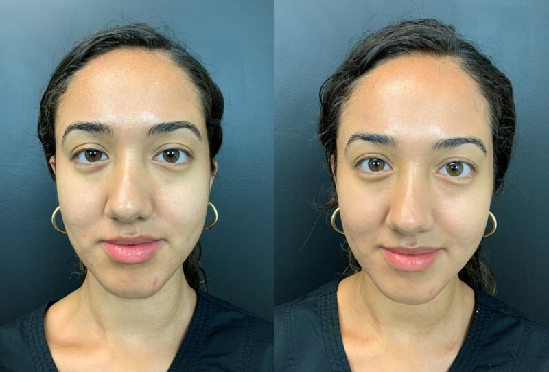HydraFacial | Palo Alto Laser & Skin Care