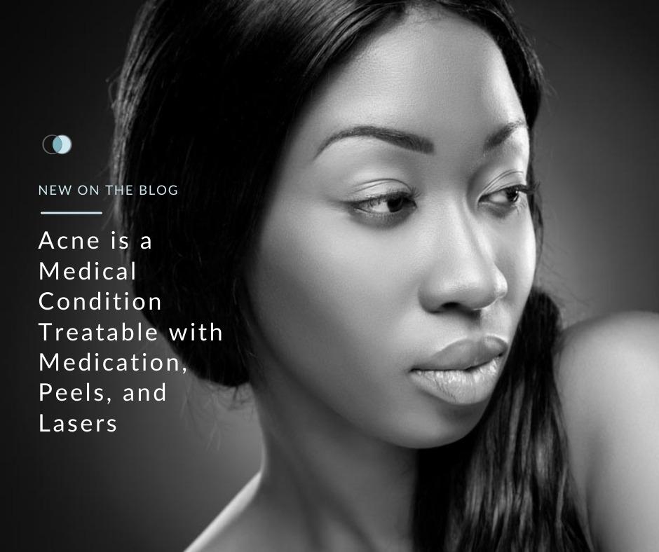 Acne is a Treatable Medical Condition | Palo Alto Laser & Skin Care