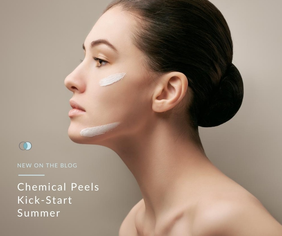 Chemical Peels Kick-Start Summer