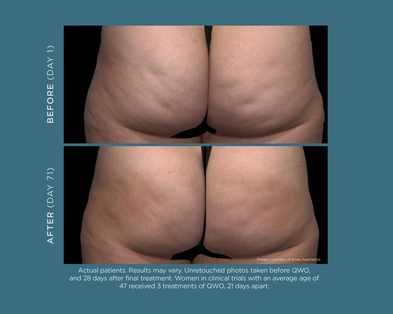 Qwo Cellulite Injection | Palo Alto Laser and Skin Care
