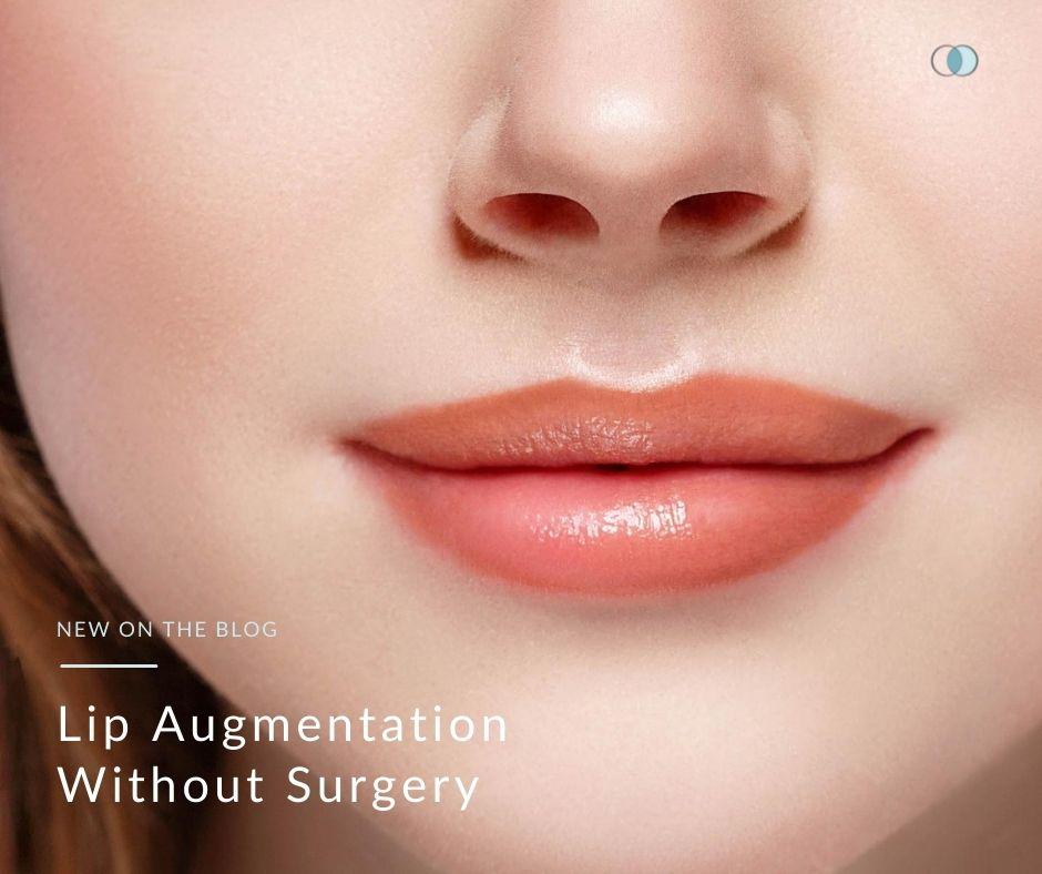 Lip Augmentation Without Surgery | Palo Alto Laser & Skin Care