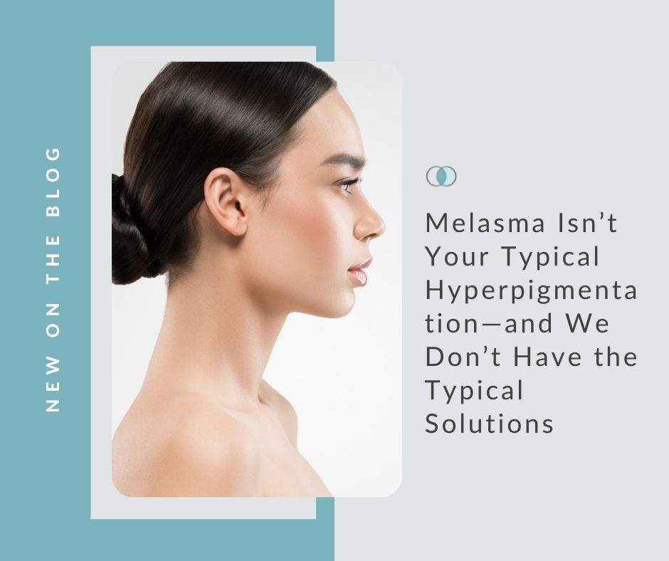 Melasma Isn't Your Typical Hyperpigmentation—and We Don't Have the Typical Solutions | Palo Alto Laser & Skin Care