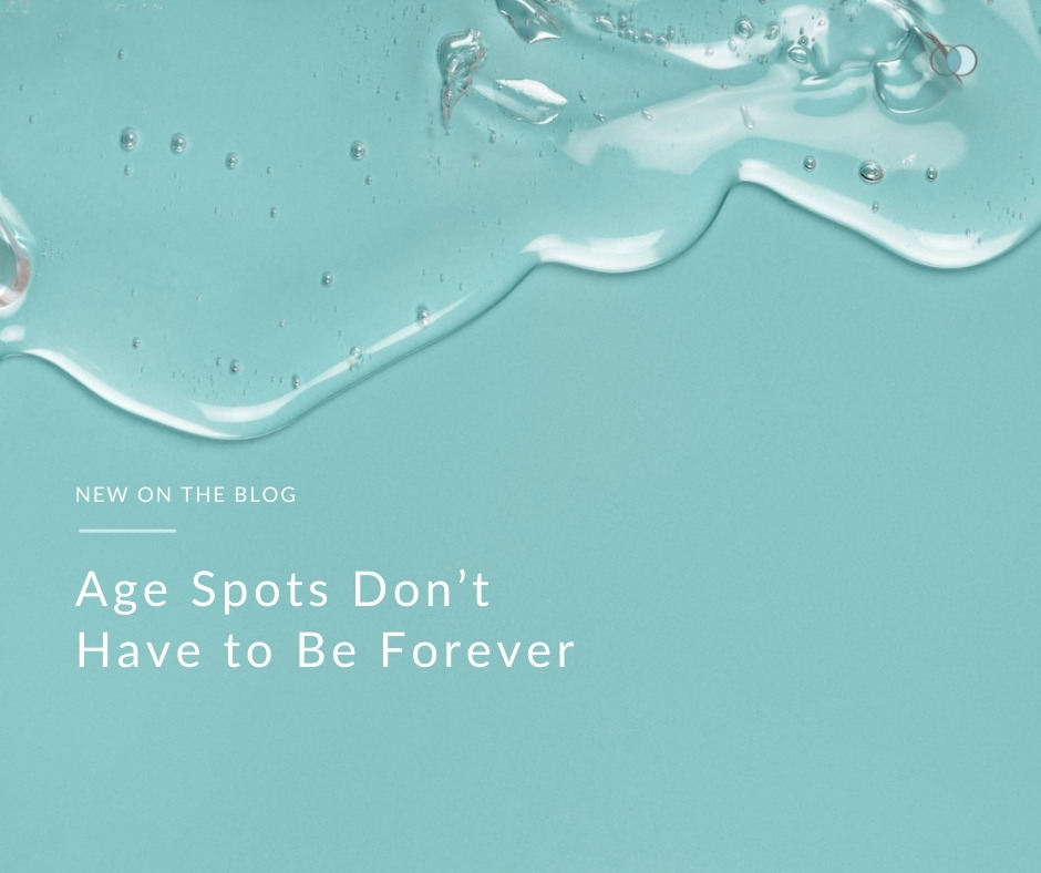 Age Spots Don't Have to Be Forever | Palo Alto Laser & Skin Care