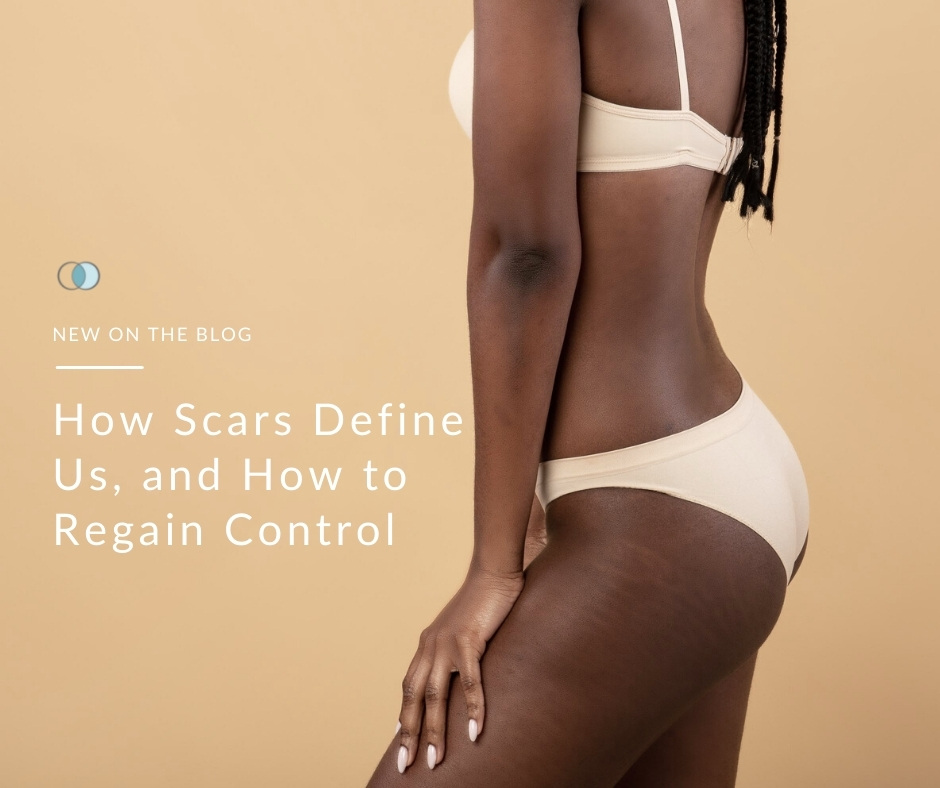 How Scars Define Us, and How to Regain Control | Palo Alto Laser